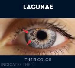لکههای روی عنبیه چشم ، چه چیزی درمورد سلامتتان میگوید ؟