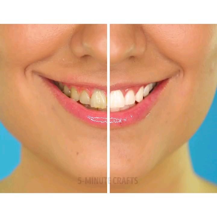 فیلم آموزش ترفندهای سفید کردن و براق کردن دندان ها
