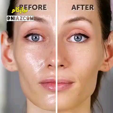 درمان پوست چرب | چگونه چربی پوست صورت را از بین ببریم