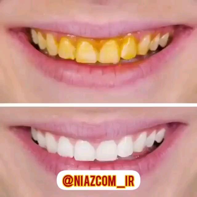 سریع ترین روش سفید کردن دندان